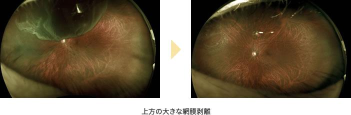 下方から広がった網膜剥離