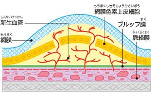 加齢黄斑変性の網膜と脈絡膜の図