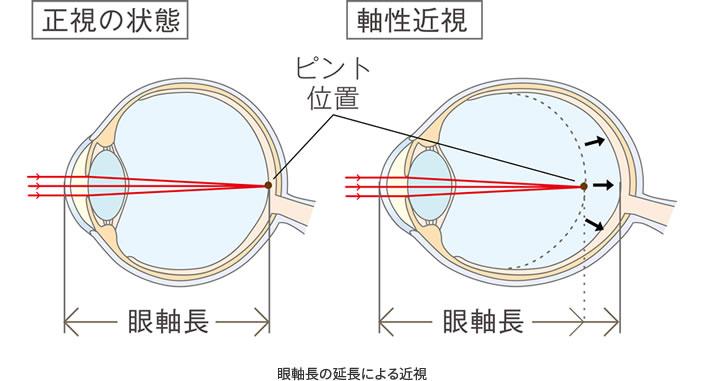 眼軸長の延長による近視