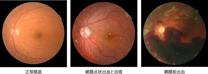 正常眼底・網膜点状出血と白斑・網膜前出血