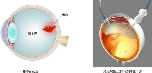 網膜硝子体手術の図
